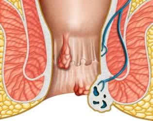 Comparsa di emorroidi interne ed esterne
